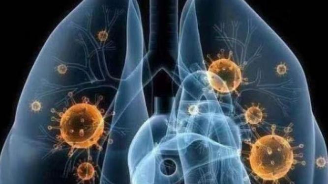 法国研究显示:六成新冠住院患者半年后仍有长期症状